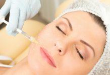 manfaat implantasi kolagen
