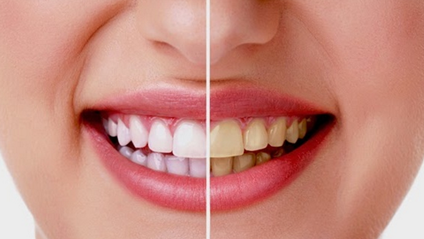 Memiliki gigi yang putih dan bersih tentu menjadi dambaan bagi setiap  orang. Namun d6dea50ea3