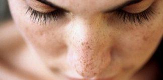 flek hitam, noda hitam, kesehatan kulit wajah, maxine