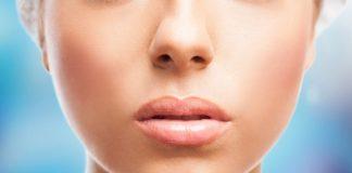 bibir kering, puasa